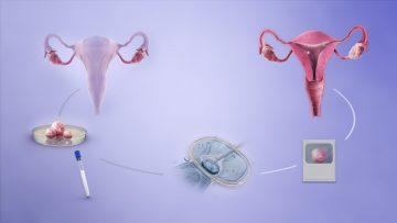 IVF process | IVF postcode lottery